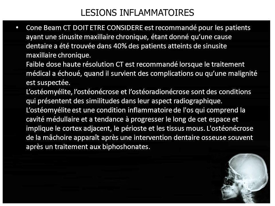 LESIONS INFLAMMATOIRES Cone Beam CT DOIT ETRE CONSIDERE est recommandé pour les patients ayant une sinusite maxillaire chronique, étant donné quune ca