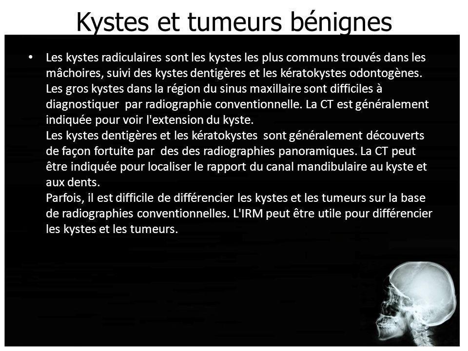 Kystes et tumeurs bénignes Les kystes radiculaires sont les kystes les plus communs trouvés dans les mâchoires, suivi des kystes dentigères et les kér