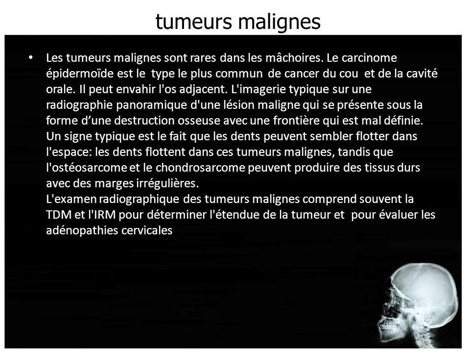 tumeurs malignes Les tumeurs malignes sont rares dans les mâchoires. Le carcinome épidermoïde est le type le plus commun de cancer du cou et de la cav