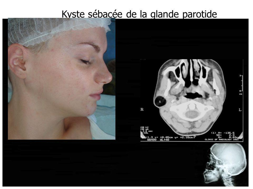 Kyste sébacée de la glande parotide