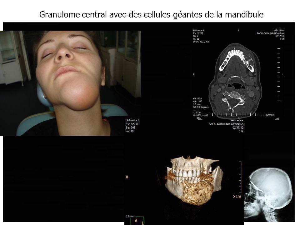 Granulome central avec des cellules géantes de la mandibule