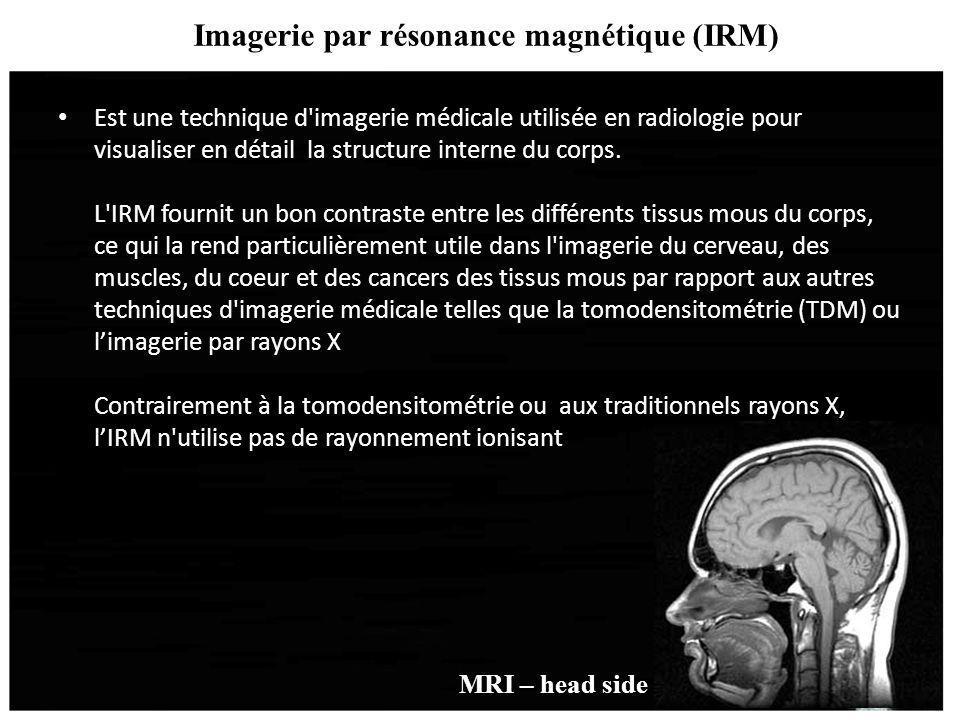 Imagerie par résonance magnétique (IRM) Est une technique d'imagerie médicale utilisée en radiologie pour visualiser en détail la structure interne du