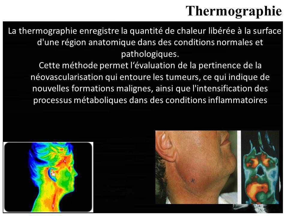 Thermographie La thermographie enregistre la quantité de chaleur libérée à la surface d'une région anatomique dans des conditions normales et patholog