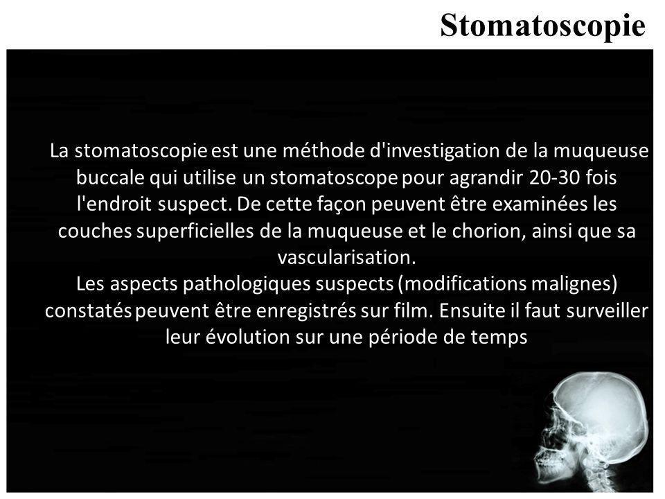 Stomatoscopie La stomatoscopie est une méthode d'investigation de la muqueuse buccale qui utilise un stomatoscope pour agrandir 20-30 fois l'endroit s
