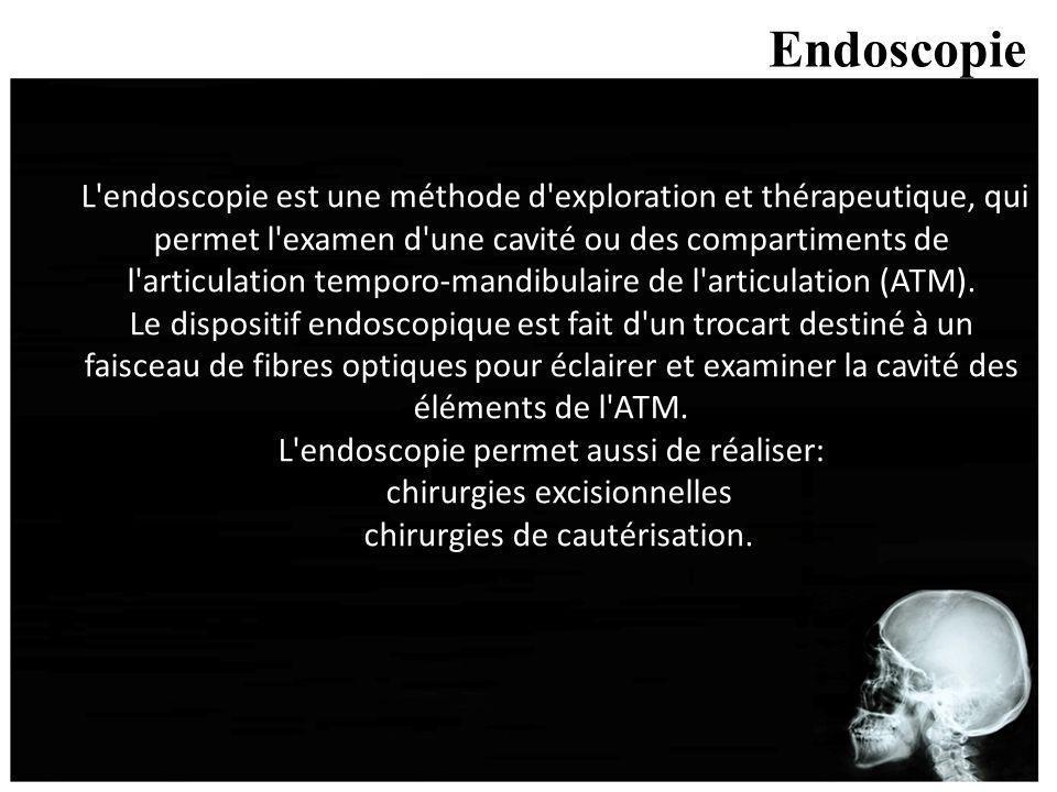 Endoscopie L'endoscopie est une méthode d'exploration et thérapeutique, qui permet l'examen d'une cavité ou des compartiments de l'articulation tempor