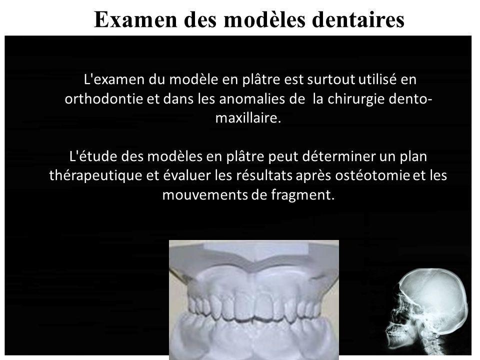 Examen des modèles dentaires L'examen du modèle en plâtre est surtout utilisé en orthodontie et dans les anomalies de la chirurgie dento- maxillaire.