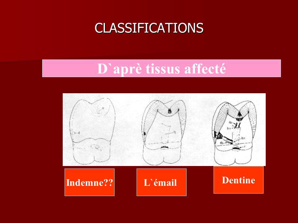 CLASSIFICATIONS D`aprè tissus affecté L`émail Dentine Indemne??