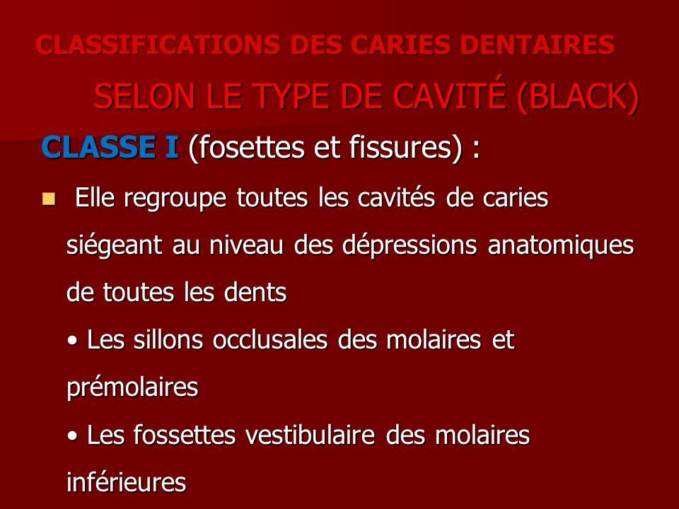 SELON LE TYPE DE CAVITÉ (BLACK) SELON LE TYPE DE CAVITÉ (BLACK) CLASSE I (fosettes et fissures) : Elle regroupe toutes les cavités de caries siégeant