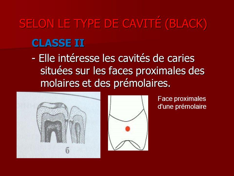 CLASSE II - Elle intéresse les cavités de caries situées sur les faces proximales des molaires et des prémolaires. Face proximales d'une prémolaire SE
