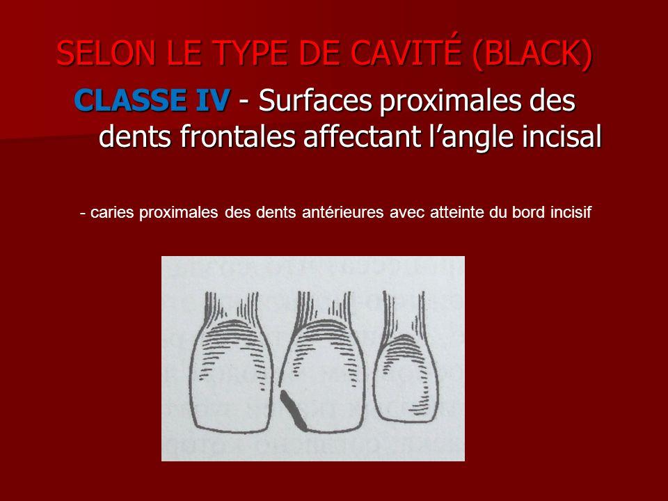CLASSE IV - Surfaces proximales des dents frontales affectant langle incisal - caries proximales des dents antérieures avec atteinte du bord incisif S