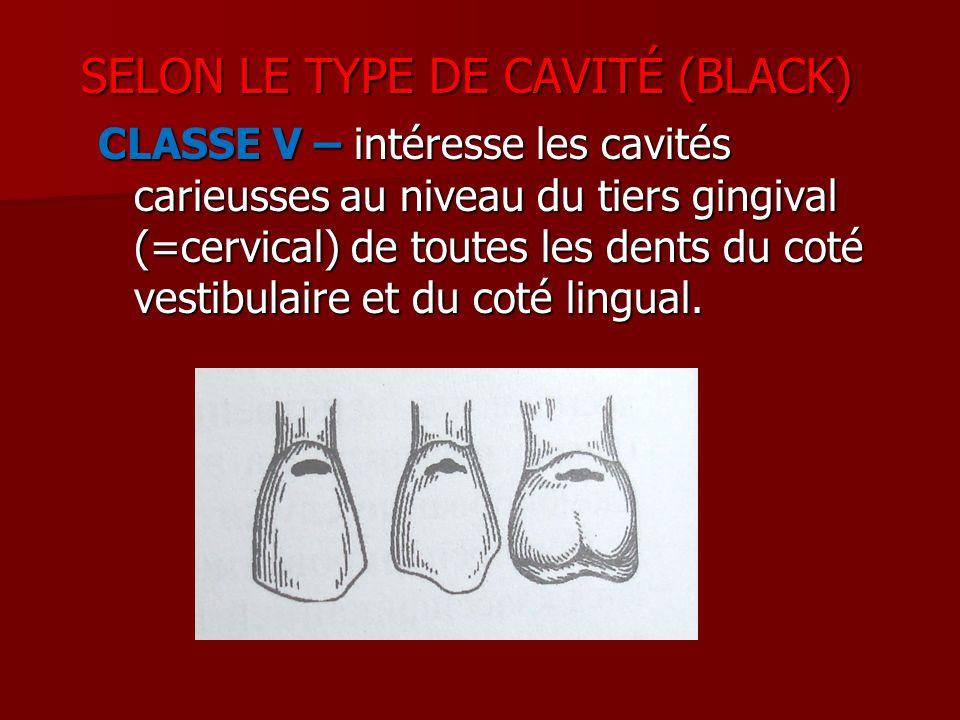 CLASSE V – intéresse les cavités carieusses au niveau du tiers gingival (=cervical) de toutes les dents du coté vestibulaire et du coté lingual. SELON