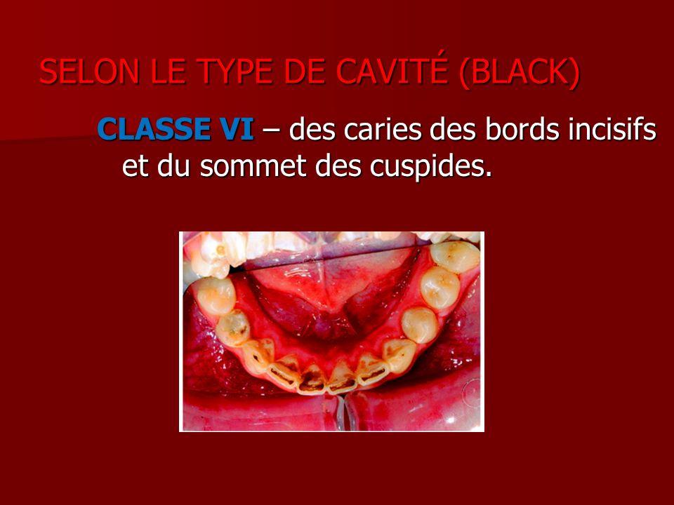 CLASSE VI – des caries des bords incisifs et du sommet des cuspides. SELON LE TYPE DE CAVITÉ (BLACK) SELON LE TYPE DE CAVITÉ (BLACK)