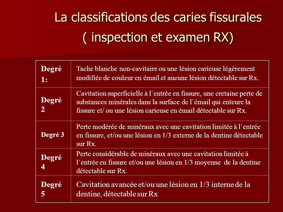 La classifications des caries fissurales ( inspection et examen RX) Degré 1: Tache blanche non-cavitaire ou une lésion carieuse légèrement modifiée de