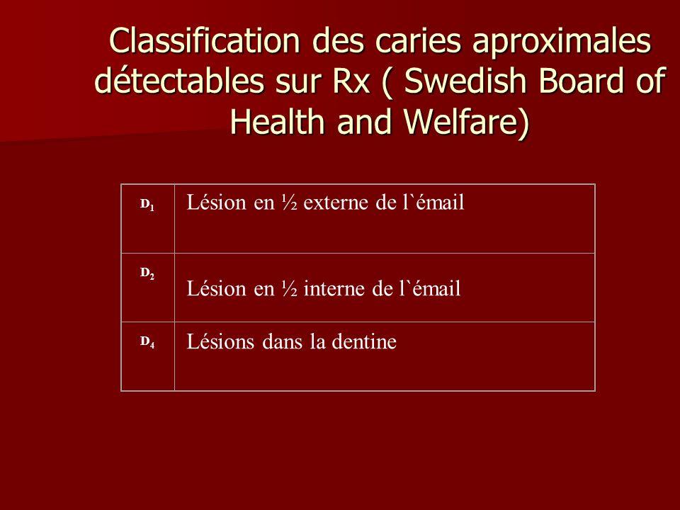Classification des caries aproximales détectables sur Rx ( Swedish Board of Health and Welfare) D1D1 Lésion en ½ externe de l`émail D2D2 Lésion en ½ i