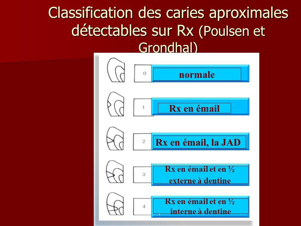 Classification des caries aproximales détectables sur Rx (Poulsen et Grondhal) normale Rx en émail Rx en émail, la JAD Rx en émail et en ½ externe à d