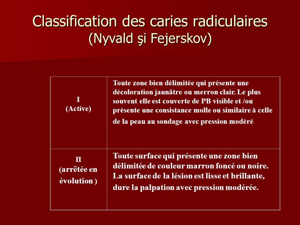 Classification des caries radiculaires (Nyvald şi Fejerskov) I (Active) Toute zone bien délimitée qui présente une décoloration jaunâtre ou merron cla