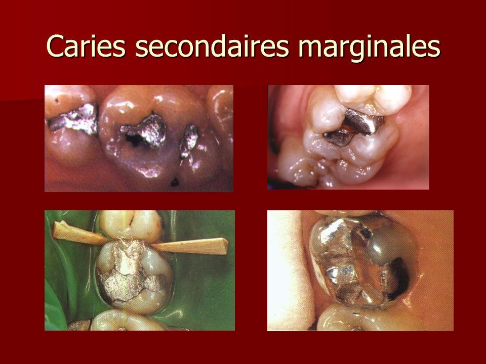 Caries secondaires marginales