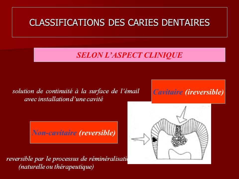 CLASSIFICATIONS DES CARIES DENTAIRES SELON LASPECT CLINIQUE Non-cavitaire (reversible) Cavitaire (ireversible) reversible par le processus de réminéra