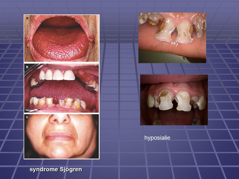 syndrome Sjögren hyposialie