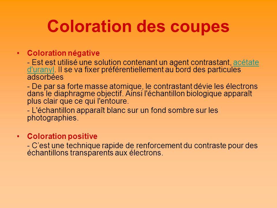 Coloration des coupes Coloration négative - Est est utilisé une solution contenant un agent contrastant, acétate d'uranyl. Il se va fixer préférentiel