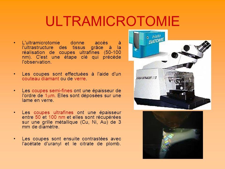 ULTRAMICROTOMIE L'ultramicrotomie donne accès à l'ultrastructure des tissus grâce à la réalisation de coupes ultrafines (50-100 nm). C'est une étape c