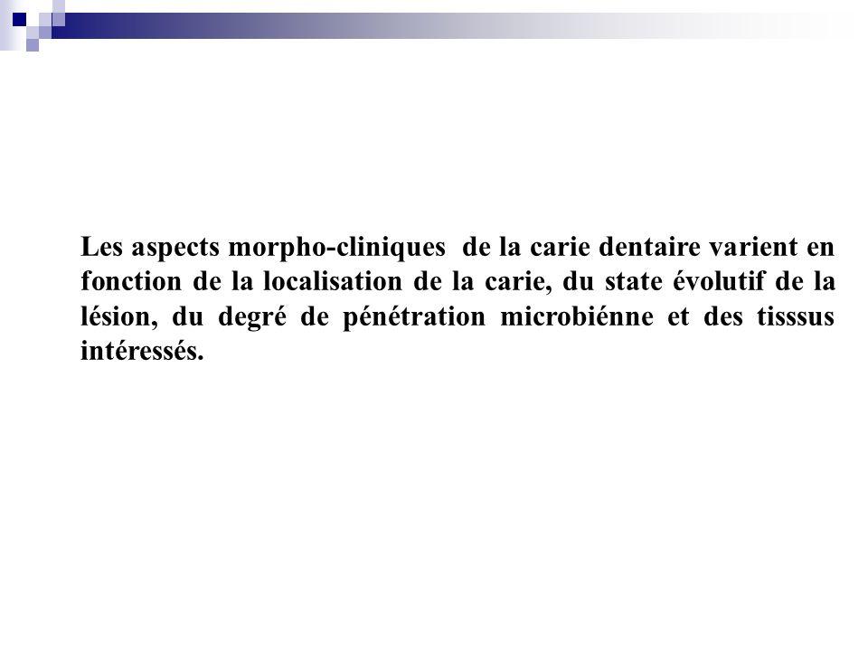 Les aspects morpho-cliniques de la carie dentaire varient en fonction de la localisation de la carie, du state évolutif de la lésion, du degré de péné