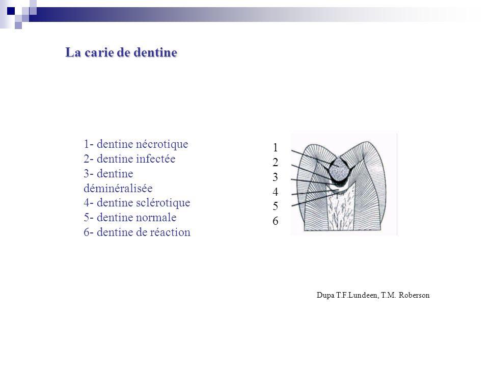 123456123456 1- dentine nécrotique 2- dentine infectée 3- dentine déminéralisée 4- dentine sclérotique 5- dentine normale 6- dentine de réaction Dupa