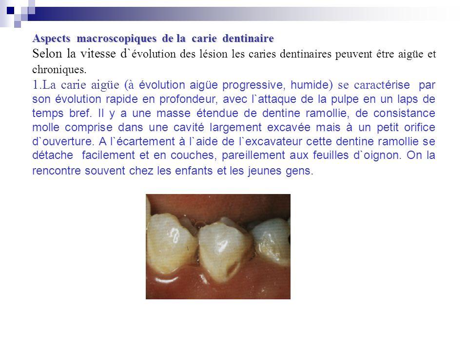Aspects macroscopiques de la carie dentinaire Selon la vitesse d` évolution des lésion les caries dentinaires peuvent être aigüe et chroniques. 1.La c