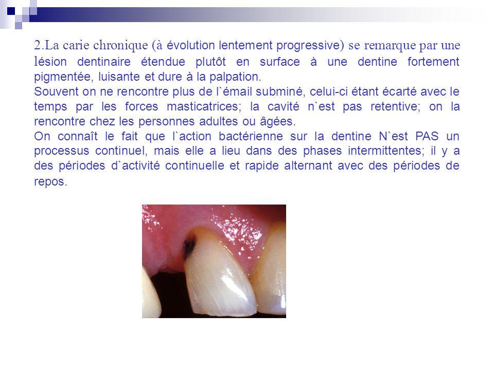 2.La carie chronique (à évolution lentement progressive ) se remarque par une l ésion dentinaire étendue plutôt en surface à une dentine fortement pig