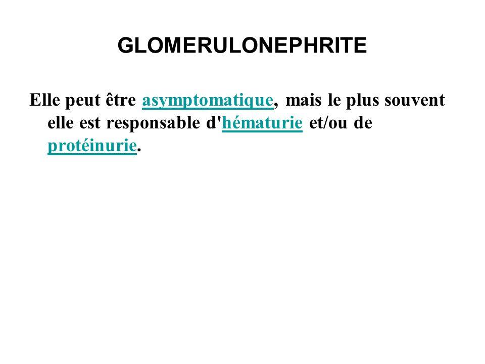 GLOMERULONEPHRITE La glomérulonéphrite peut être aiguë ou chronique.
