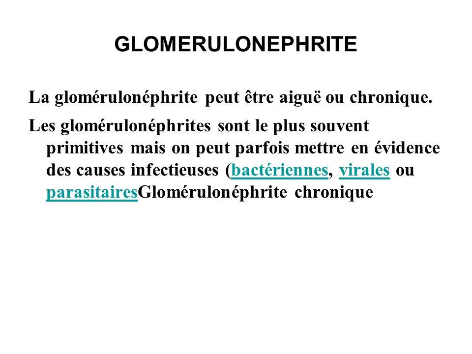 GLOMERULONEPHRITE GNC syndrome qui reflète la phase terminale d une maladie inflammatoire glomérulaire.