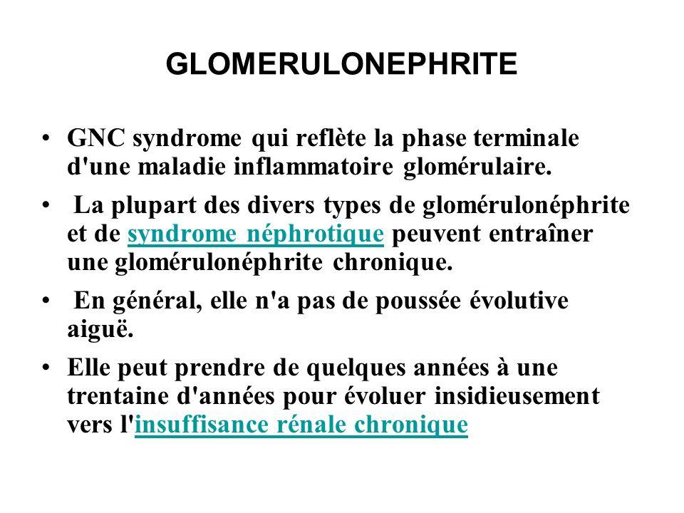 GLOMERULONEPHRITE Symptômes Œdème généralisé Hypertension Hématurie Protéinurie Oligurie
