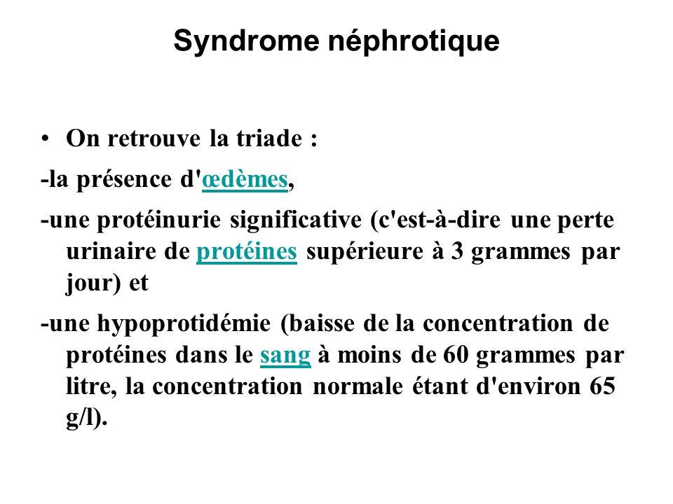 Syndrome néphrotique Maladies responsables de syndrome néphrotique Amylose : par dépôt de protéines amyloïdes anormales dans les glomérules.Amyloseglomérules Néphropathie diabétique : par altération des capillaires liée à l hyperglycémie chronique (trop de sucre dans le sang entraîne la glycation de nombreuses protéines, dont certaines fragilisent les parois des capillaires sanguins, en particulier des reins et de la rétine).Néphropathie diabétiquesucrerétine
