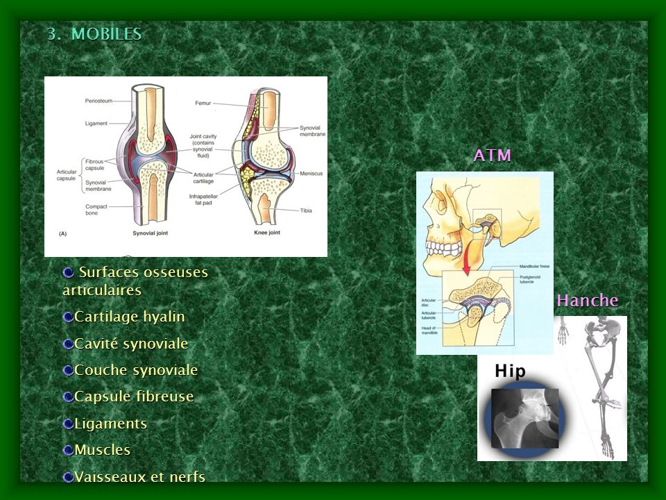 3.MOBILES Surfaces osseuses articulaires Surfaces osseuses articulaires Cartilage hyalin Cavité synoviale Couche synoviale Capsule fibreuse LigamentsM