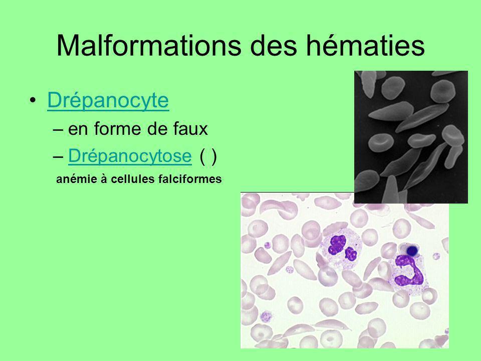 Malformations des hématies Drépanocyte –en forme de faux –Drépanocytose ( )Drépanocytose anémie à cellules falciformes