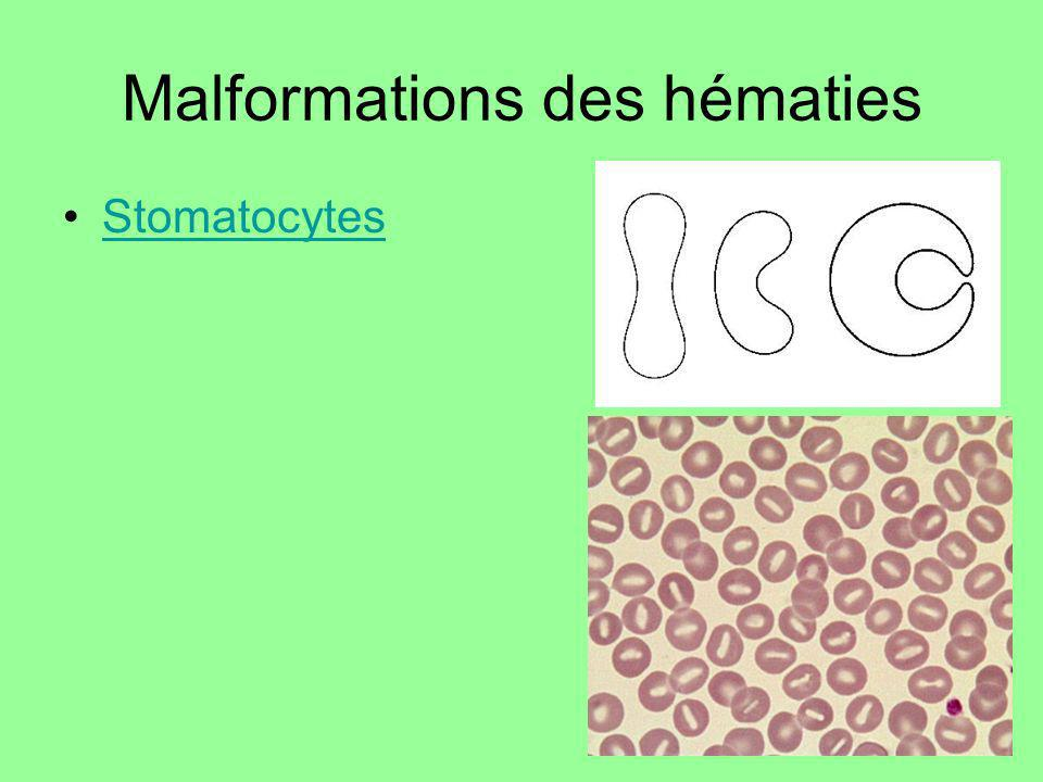 Malformations des hématies Stomatocytes