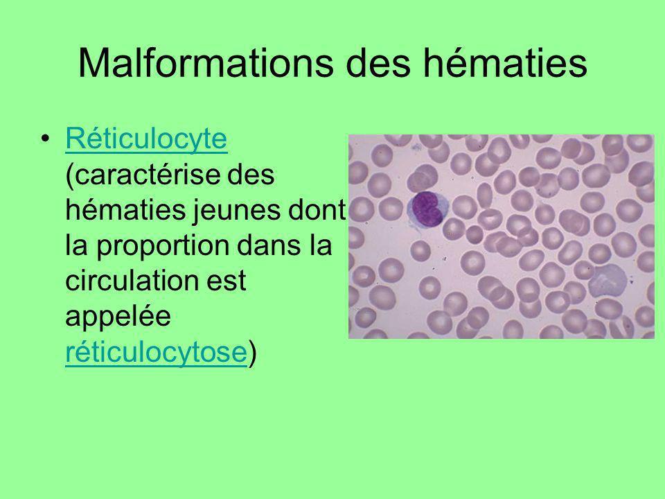 Malformations des hématies Réticulocyte (caractérise des hématies jeunes dont la proportion dans la circulation est appelée réticulocytose)Réticulocyt