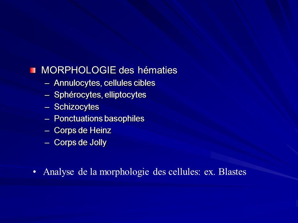 Anémies mégaloblastiques Erythroblaste pathologique résultant dune anomalie de synthèse de lADN : macrocytose Causes : –Atteinte médullaire : myélodysplasie.