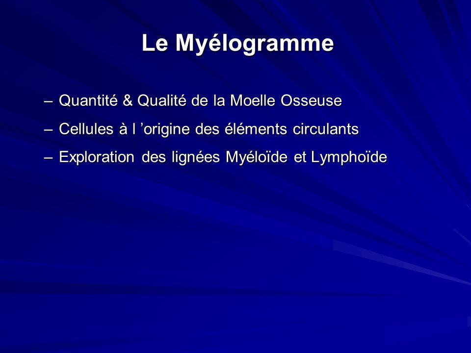 Examens paracliniques : Hémogramme : –hyper leucocytose, –anémie, –thrombopénie Frottis sanguin :Blaste à cellule jeunes.