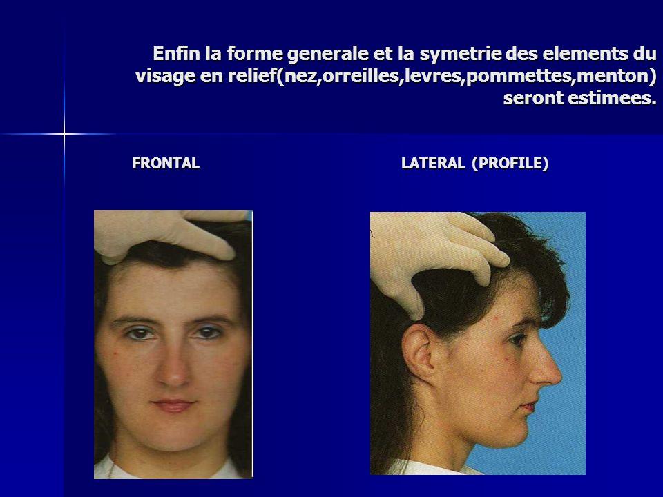 Enfin la forme generale et la symetrie des elements du visage en relief(nez,orreilles,levres,pommettes,menton) seront estimees. FRONTAL LATERAL (PROFI