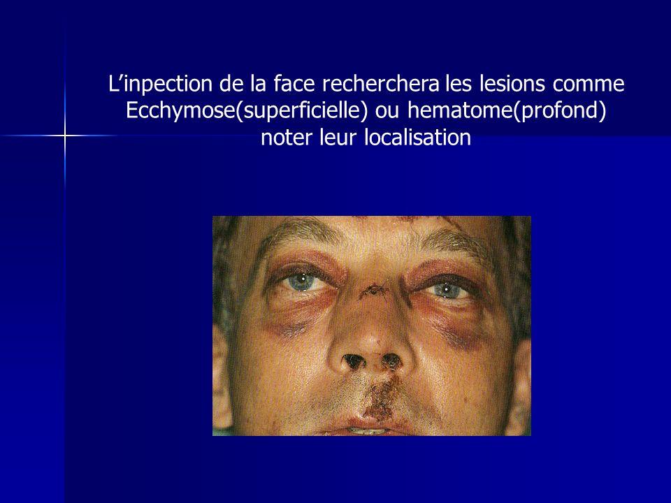 Linpection de la face recherchera les lesions comme Ecchymose(superficielle) ou hematome(profond) noter leur localisation