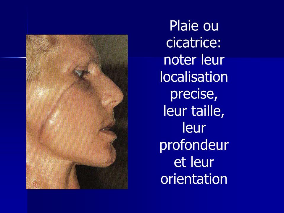 Plaie ou cicatrice: noter leur localisation precise, leur taille, leur profondeur et leur orientation
