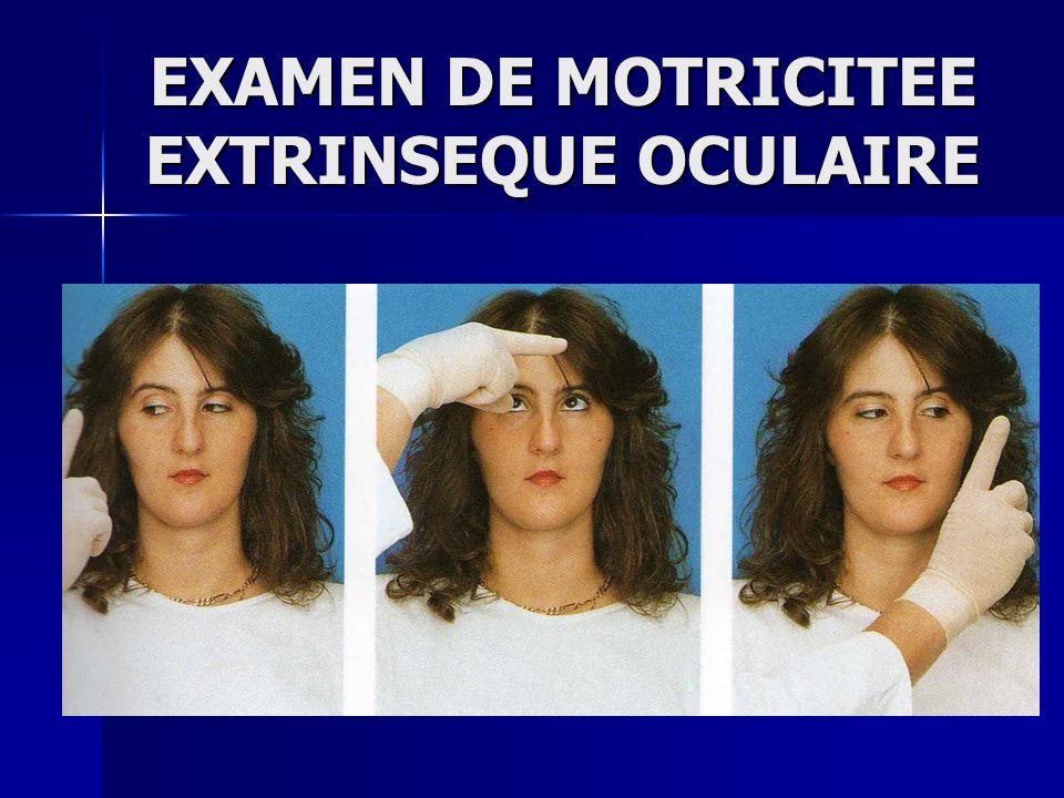 EXAMEN DE MOTRICITEE EXTRINSEQUE OCULAIRE