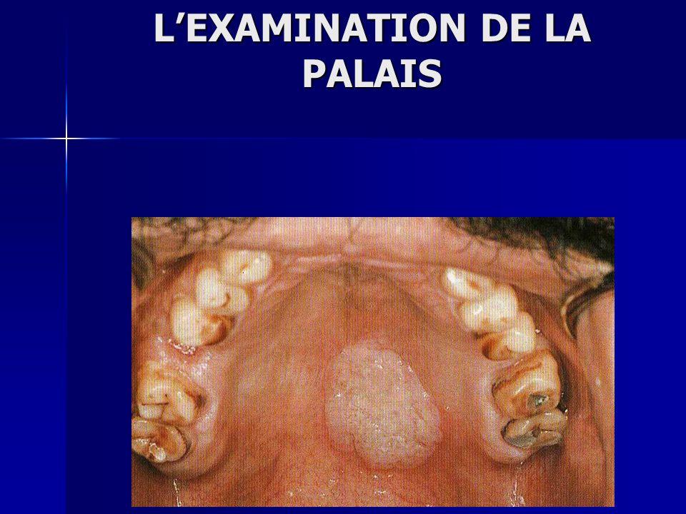 LEXAMINATION DE LA PALAIS