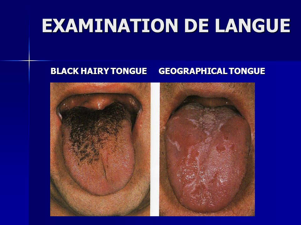 EXAMINATION DE LANGUE BLACK HAIRY TONGUE GEOGRAPHICAL TONGUE BLACK HAIRY TONGUE GEOGRAPHICAL TONGUE