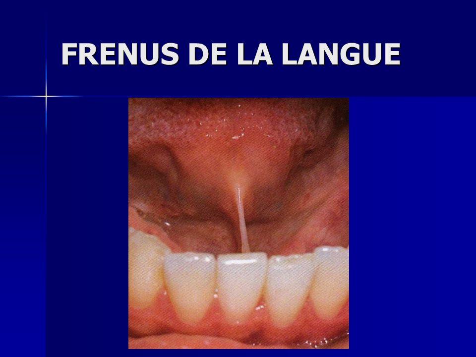 FRENUS DE LA LANGUE
