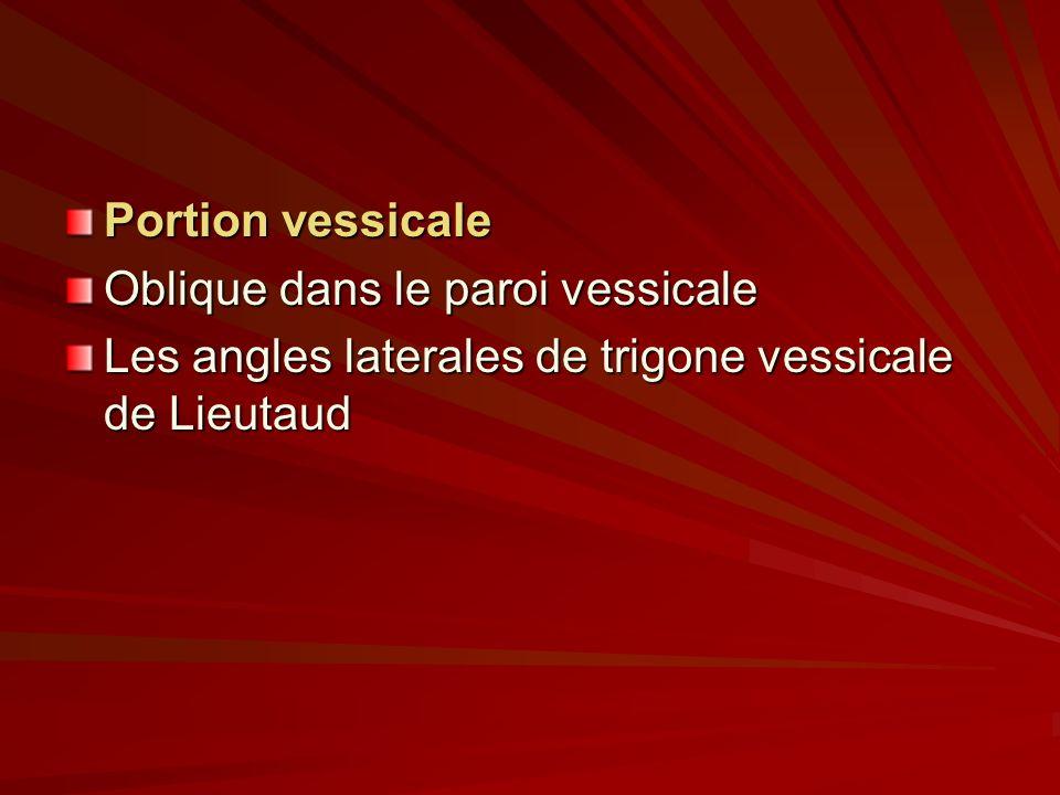 Portion vessicale Oblique dans le paroi vessicale Les angles laterales de trigone vessicale de Lieutaud