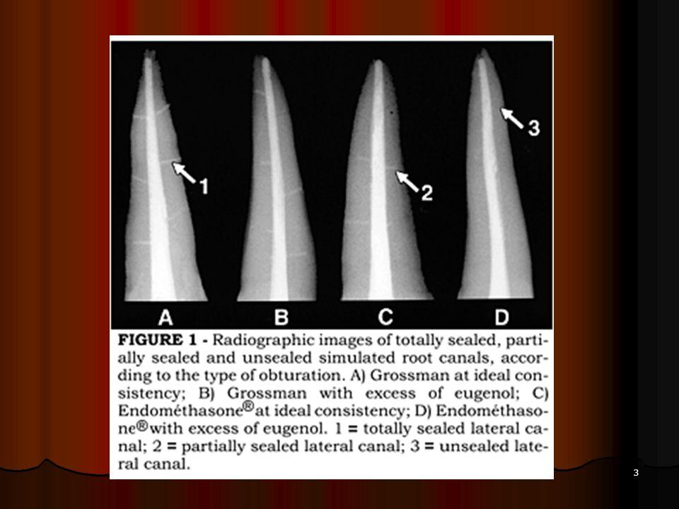 14 Les cônes accessoires de gutta ont une extrémité pointue ou aplatie.