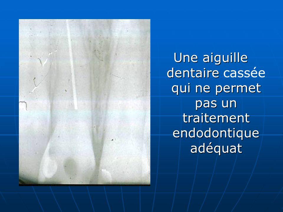 Une aiguille dentaire qui ne permet pas un traitement endodontique adéquat Une aiguille dentaire cassée qui ne permet pas un traitement endodontique a