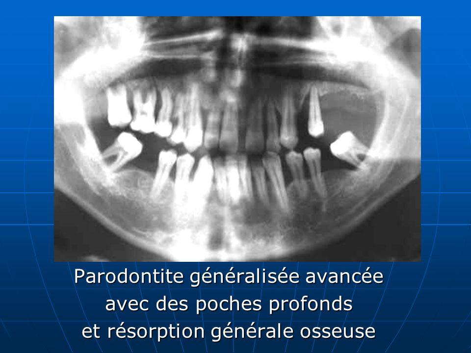 Parodontite généralisée avancée avec des poches profonds et résorption générale osseuse